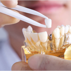 5 Things You Should Know About Dental Implants