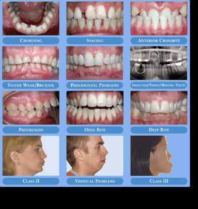 Orthodontist Brossard