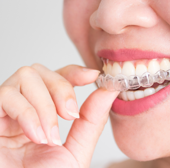 How to Properly Take Care of Your Invisalign Aligners