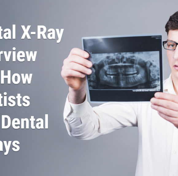 Dental X-Ray Overview and How Dentists Use Dental X-Rays