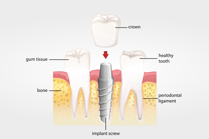 Bone tissue quality