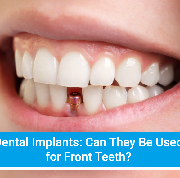 Dental Implants: Can They Be Used for Front Teeth?