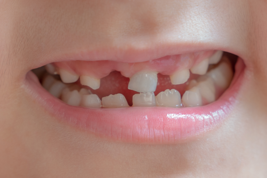 Do you have missing front teeth?