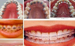 Orthodontiques