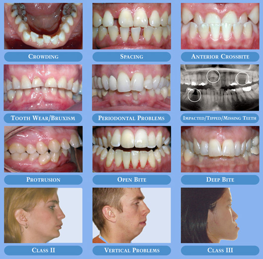 DOSSIERS ORTHODONTIQUES